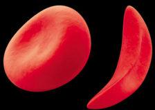 Понижение и повышение среднего объема эритроцитов