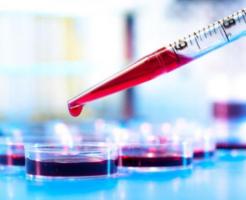 Результат анализа крови — нейтрофилы понижены