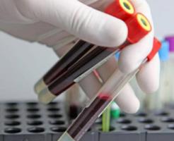 Причины повышенного белка в крови