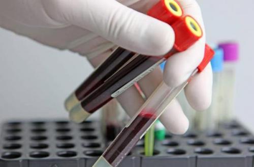Причины повышения С-реактивного белка в крови и методы лечения