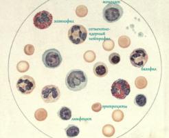 Последствия сдвига лейкоцитарной формулы