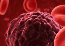 По каким причинам лимфоциты повышены у ребенка в крови?