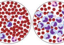 Факторы, из-за которых лимфоциты повышены в крови