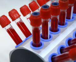 Какова норма тромбоцитов в крови у мужчин?