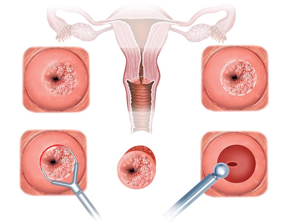 Метронидазол после биопсии шейки матки