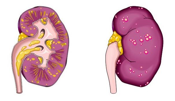 Пиелонефрит может быть причиной крови в моче