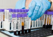 От чего сегментоядерные нейтрофилы понижены в крови?