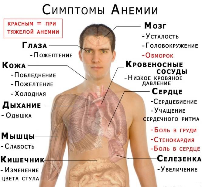 Основные симптомы недостатка гемоглобина