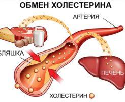 Формула расчета коэффициента атерогенности