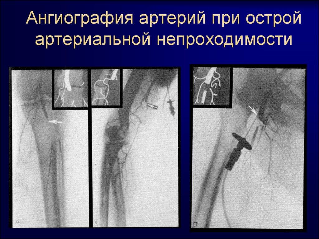 Для чего назначают ангиографическое обследование артерий ног фото