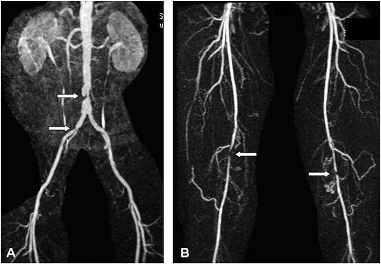 МРТ-ангиография и ангиоскопия фото