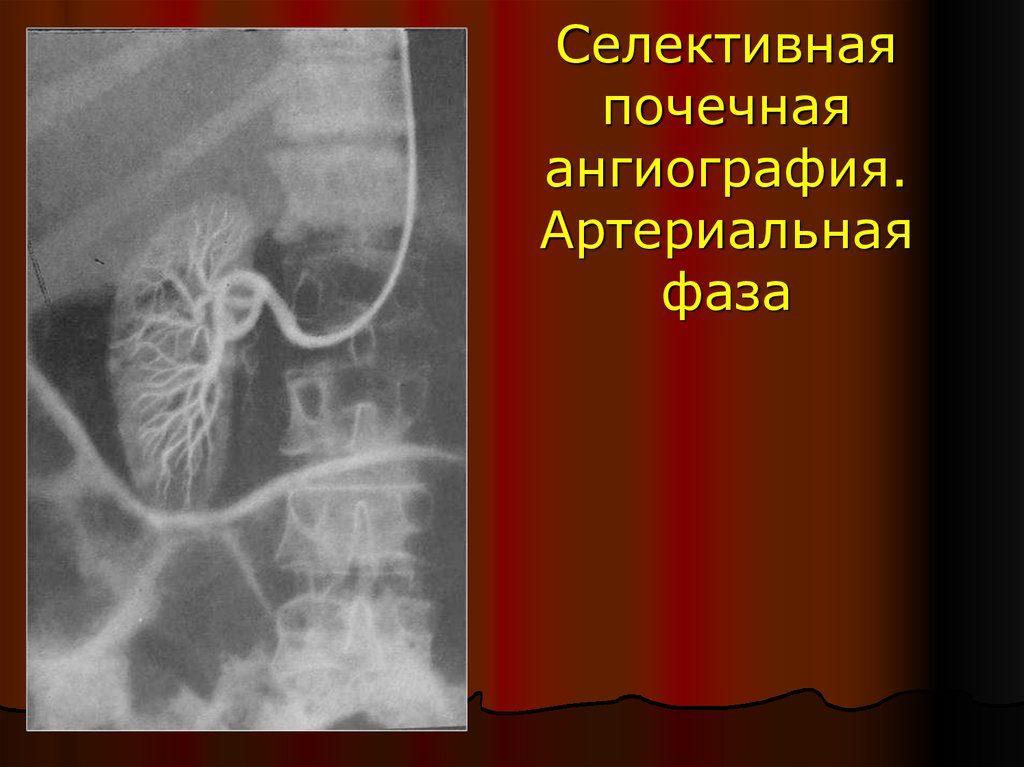 Селективная почечная ангиография фото