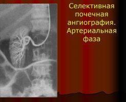 Что такое ангиография сосудов почек — виды и назначение