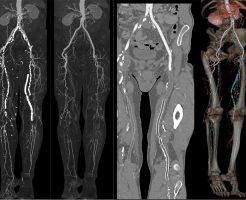 Ангиографическое исследование сосудов ног