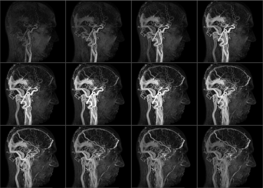 ангиограмма мозговых сосудов ФОТО