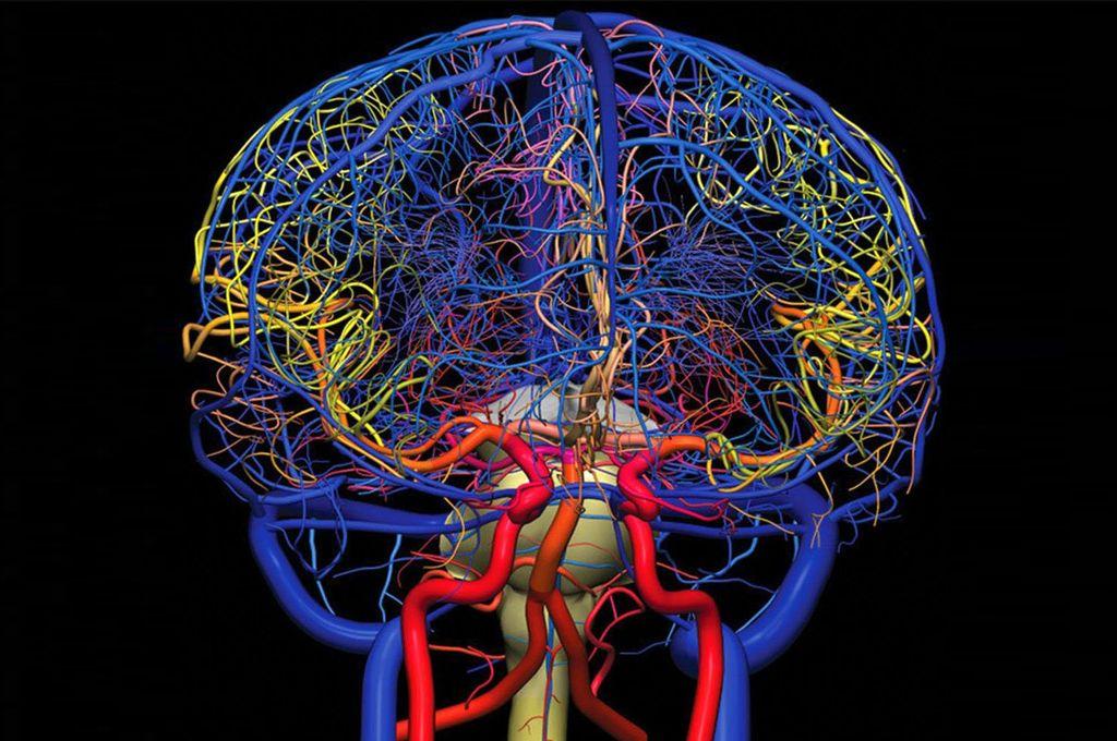 процедура ангиографии мозга ФОТО
