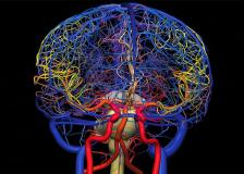 Методика ангиографии сосудов мозга и головы