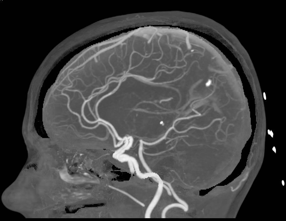 Методика ангиографии сосудов мозга и головы ФОТО