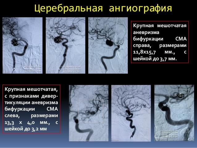 Процедура селективной ангиографии мозга фото