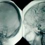 Что такое селективное церебральное исследование методом ангиографии сосудов