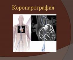 Коронарная ангиография – эффективная диагностика болезней сердца