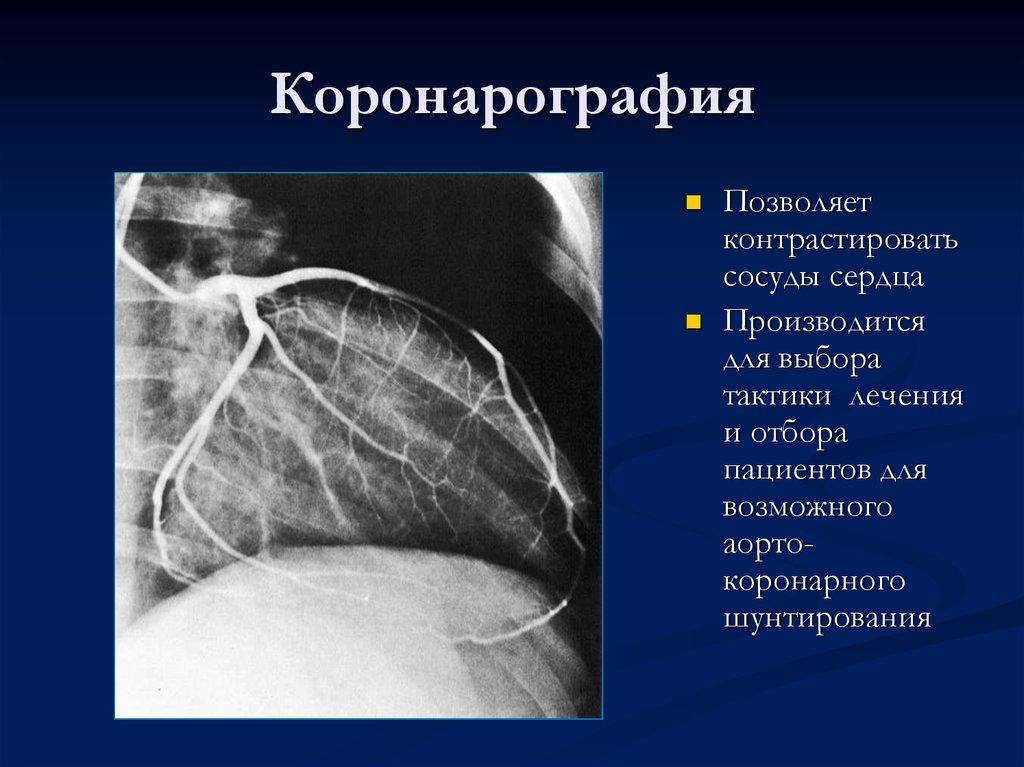 обследования коронарных артерий фото