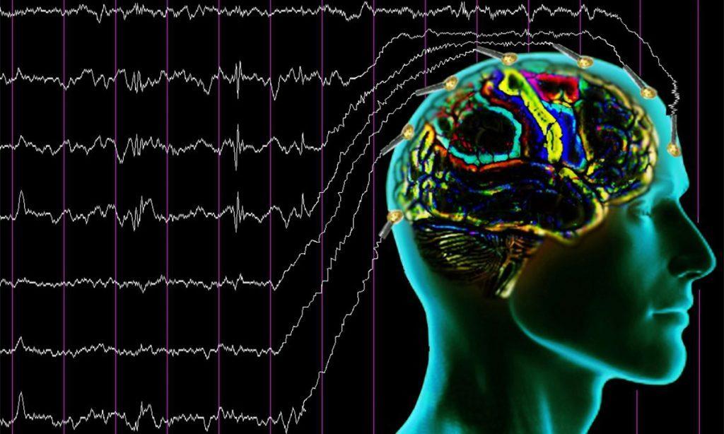 БЭА головного мозга фото