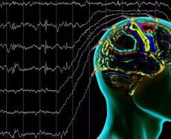 Диффузные изменения биоэлектрической активности мозга на ЭЭГ