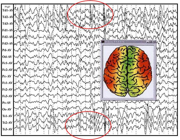 Бета активность головного мозга фото