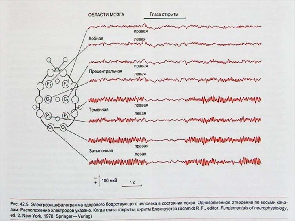Что это такое расшифровка ЭЭГ фото