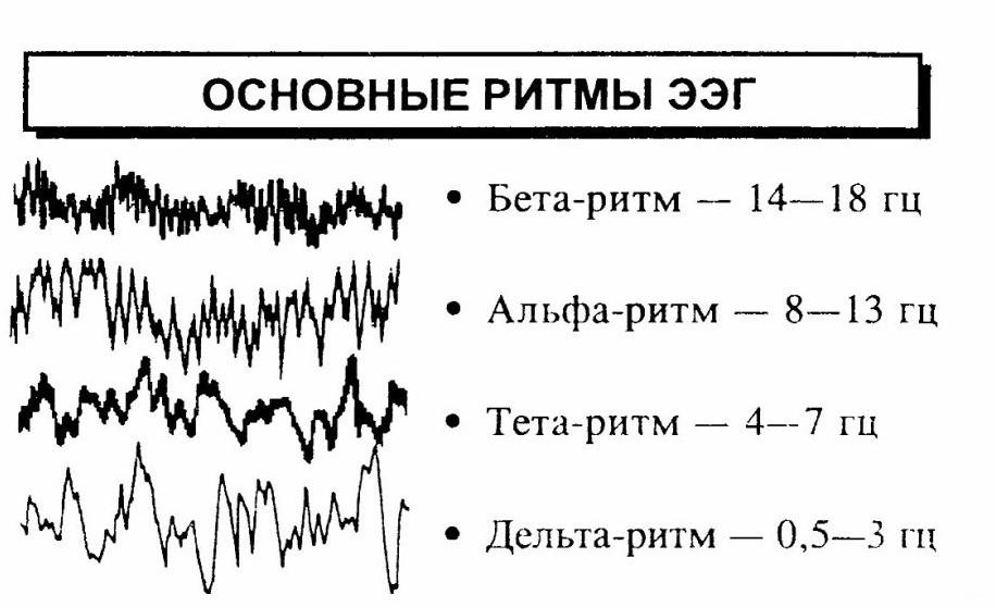 электроэнцефалограмма  головы фото