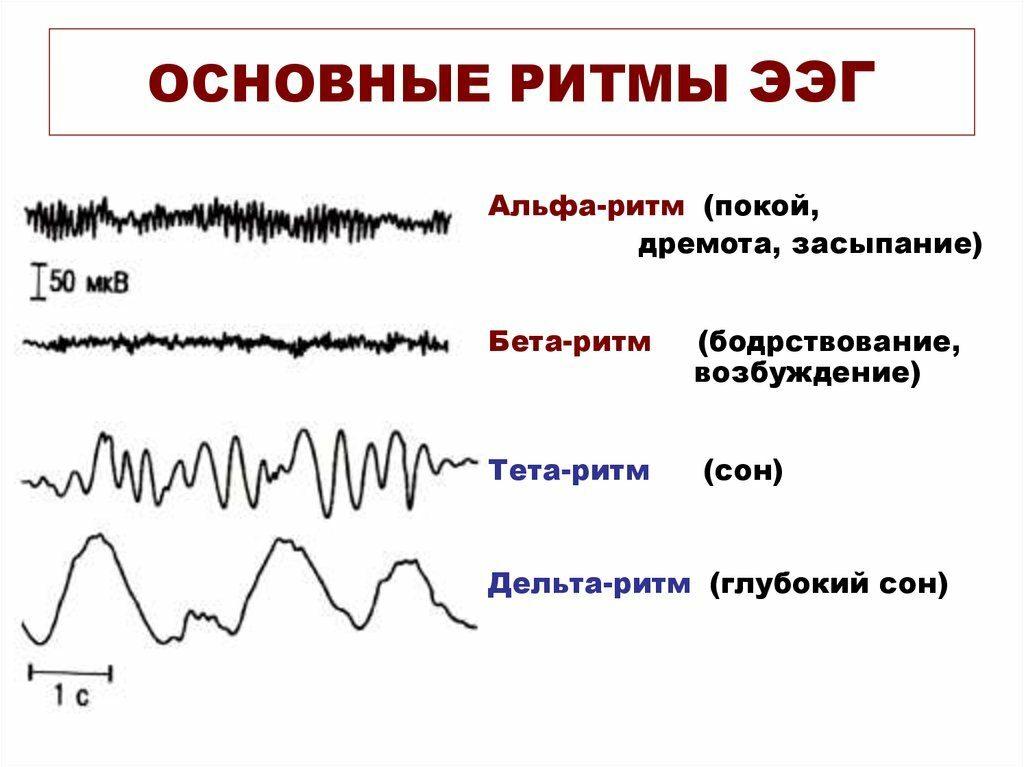 электроэнцефалография головного мозга у детей фото
