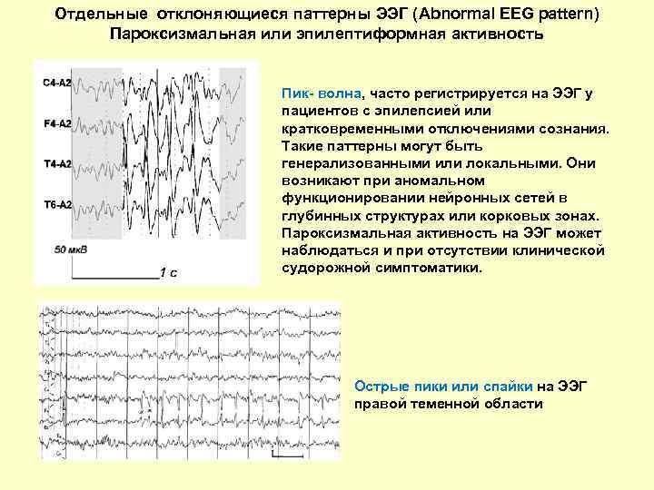 Отдельные отклоняющиеся паттерны ЭЭГ фото