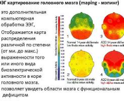 ЭЭГ при обследовании головного мозга: что показывает