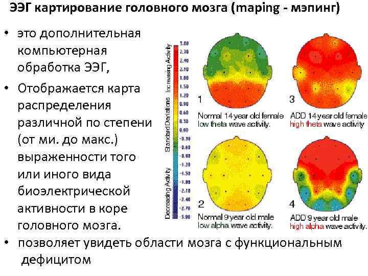 Что показывает электроэнцефалограмма головного мозга у взрослых