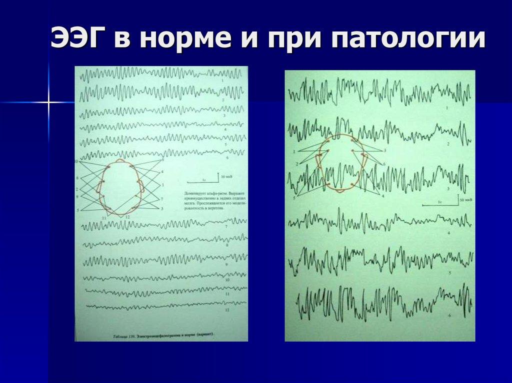 показывает ли ээг опухоль головного мозга фото