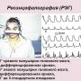 Расшифровка и оценка результатов РЭГ диагностики