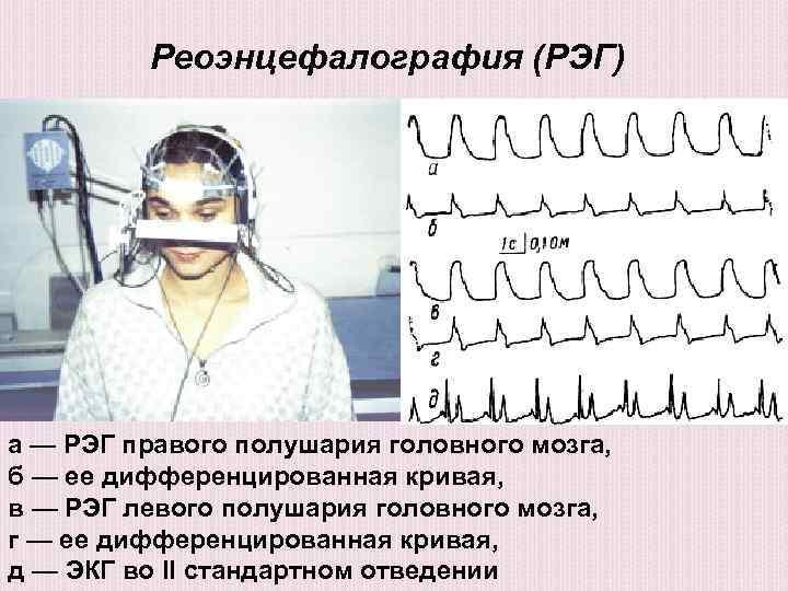 РЭГ исследование фото